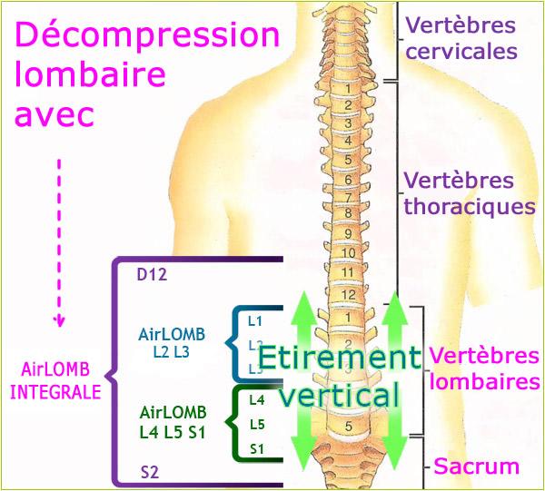 Super Traitement sciatique : symptômes, causes et traitement avec AIRLOMB AR43
