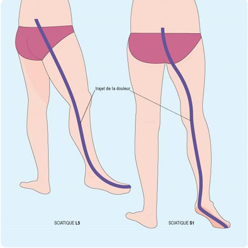 la ceinture lombaire AirLOMB aide votre nerf sciatique