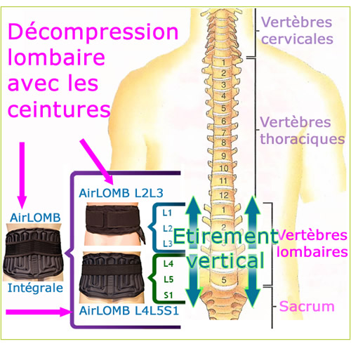 decompression-lombaire-500