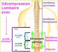 Décompression lombaire avec la ceinture lombaire AirLOMB